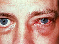 левый глаз воспаленный