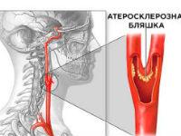 Сонные артерии на шее лечение народными средствами. Признаки и лечение атеросклероза сосудов шеи