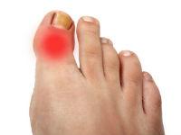 Боль в большом пальце ноги