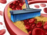 Чистка от холестерина