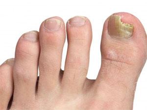 грибок ногтей ног - лечение