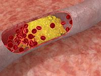 как лечить атеросклероз нижних конечностей без операции