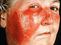 лицо с пятном