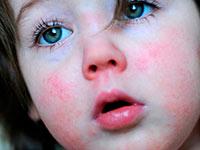 у ребенка сыпь на лице