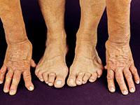 руки и ноги