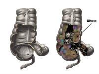 Зашлакованный кишечник