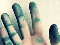 Руки, испачканные зеленкой