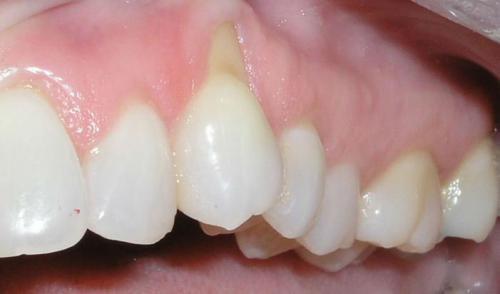 Поддесновой зубной камень