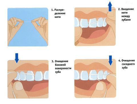 Правила пользования зубной нитью