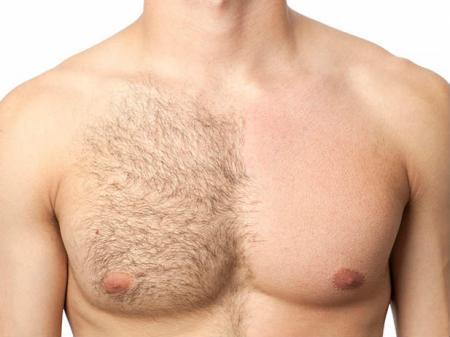 Удаление волос без раздражения