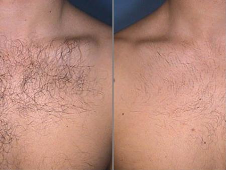 Удаление волос лазером