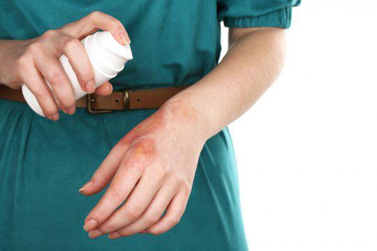 Нанесение антисептического средства на ожог