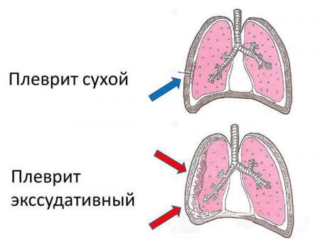 сухой и экссудативный плеврит