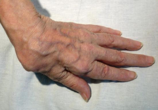 Деформация кисти руки