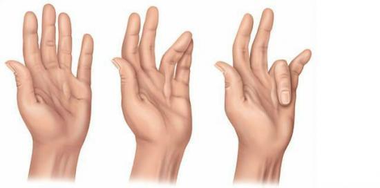 Контрактура кистей рук