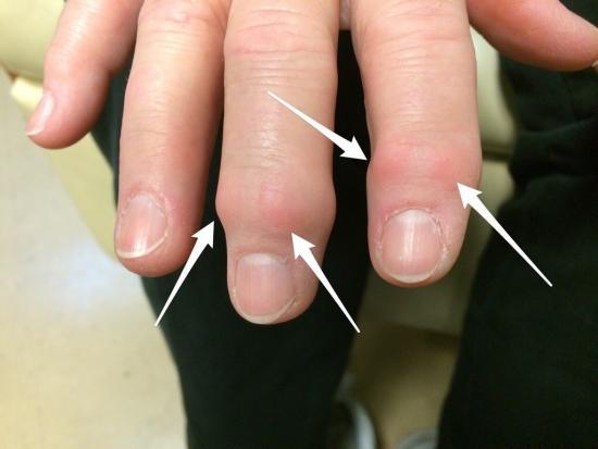 Узелки на пальцах при артрозе