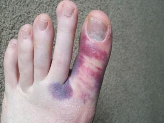 Травма большого пальца ноги