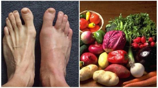 Лечение артрита стопы