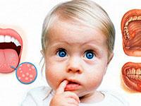 ребенок с пальцем во рту