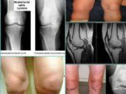 Болезни коленных суставов