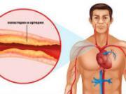Холестерин у мужчин