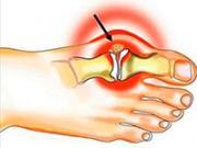 косточка возле большого пальца красного цвета
