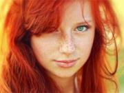 девушка с пигментными пятнами на лице