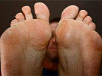мазоли на ступнях
