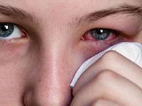 глаз и платочек