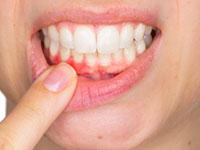 женщина оттягивает нижнюю губу