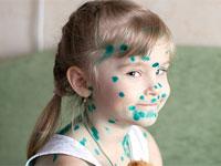 девочка в пятнах от зеленки