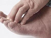 Средство от зуда между пальцев ног